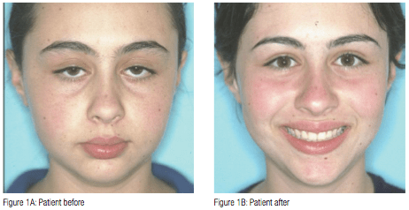 The Effects Of Enlarged Adenoids On A Developing Malocclusion